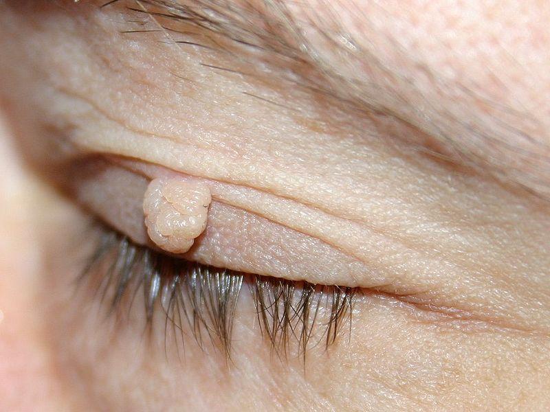 Можно ли спутать бородавку с меланомой?