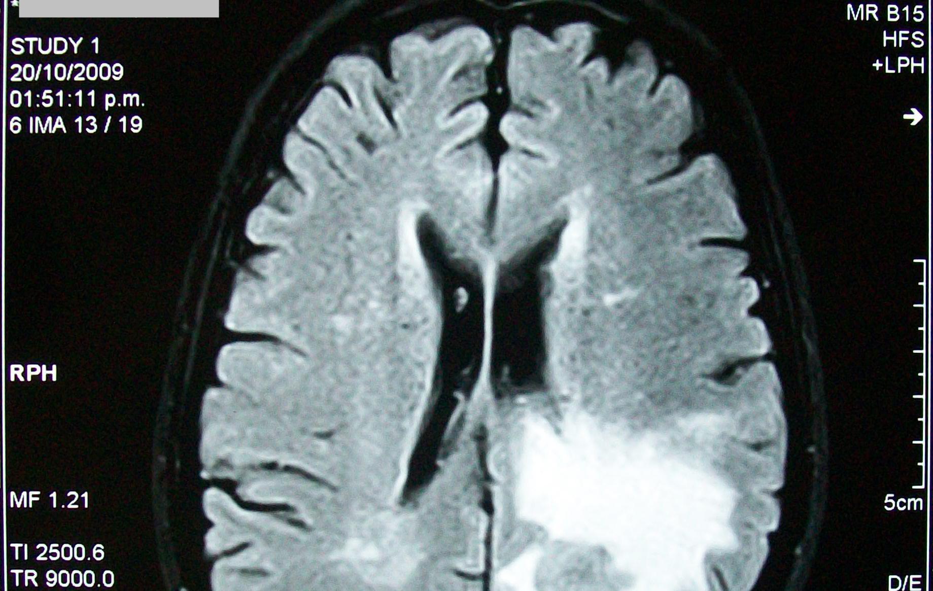 Может ли быть кровь из носа симптомом опухоли мозга?