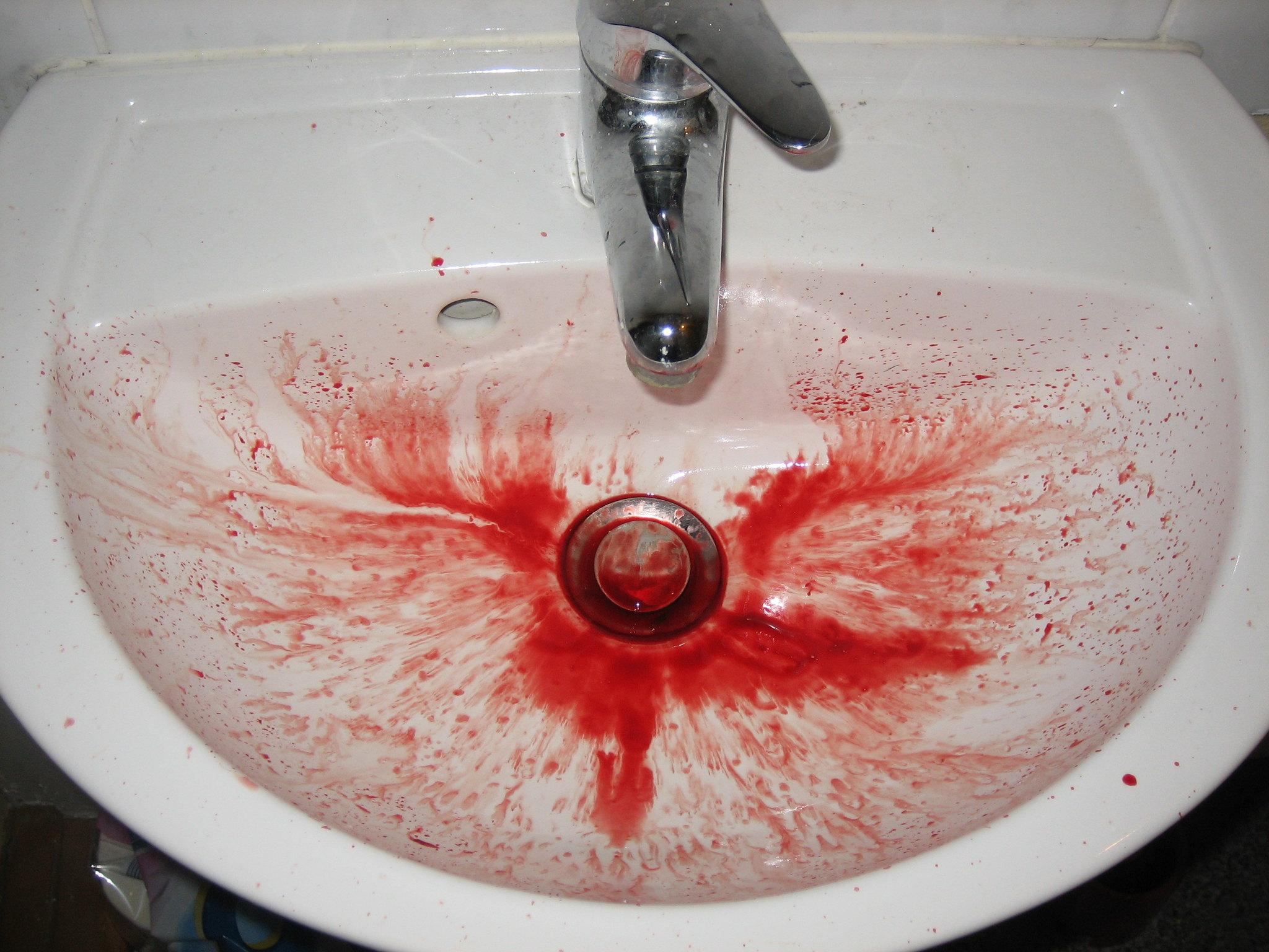 Опасно ли кровотечение из носа со сгустками крови?