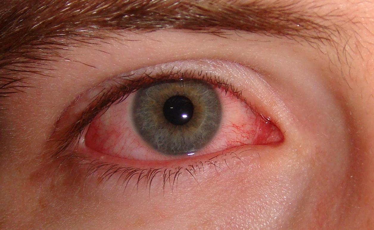 Почему краснеют глаза?